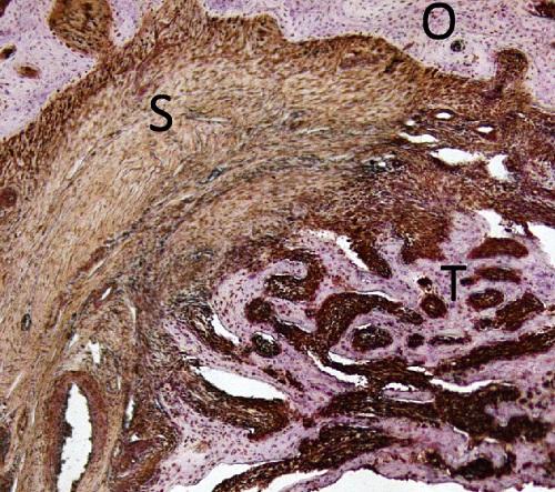 osteosarcoma-con-lettere